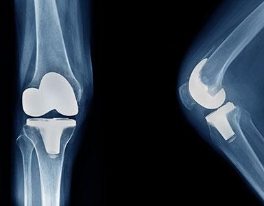 eklem-protez-cerrahisi