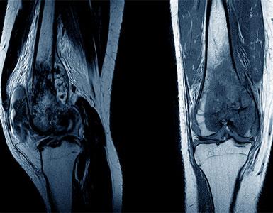 ortopedik-onkoloji