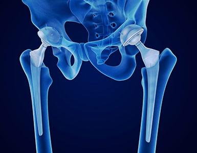 kalça protez revizyonu
