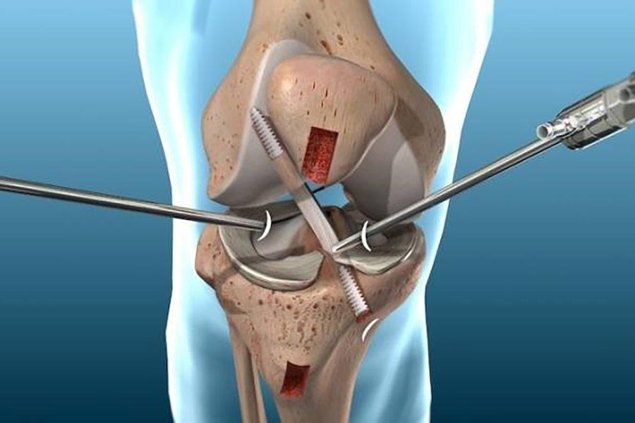 Artroskopik-Diz-Ameliyat_C4_B1-(Kapal_C4_B1-Diz-Ameliyat_C4_B1)-Nedir