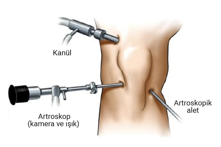 Diz Artroskopisi (Kapalı Ameliyatı) Nasıl Yapılır?