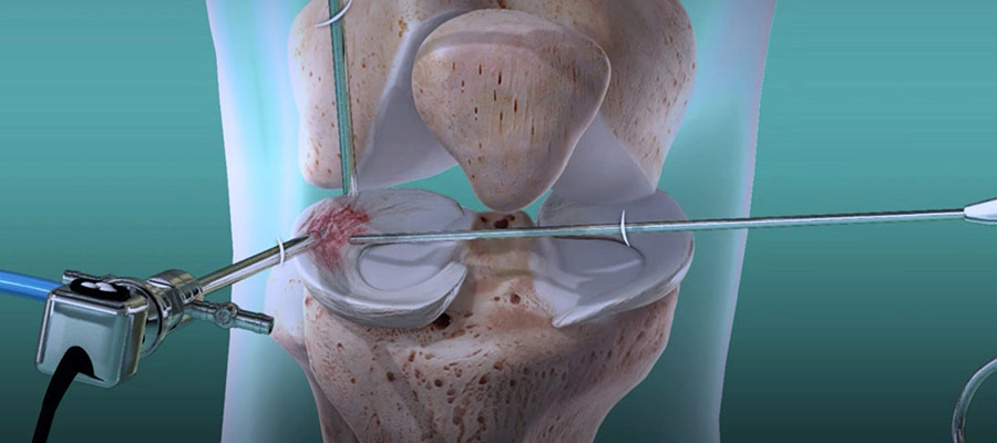 Diz-artroskopi-ameliyati