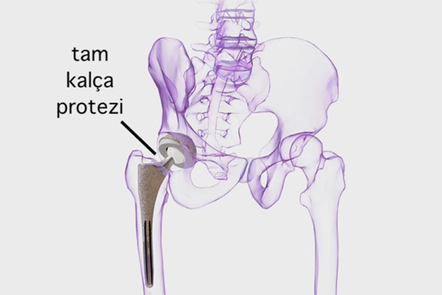 total kalça protezi ameliyatı