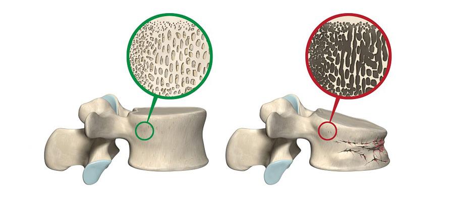 Kifoplasti / Vertebroplasti işlemi nasıl yapılır?